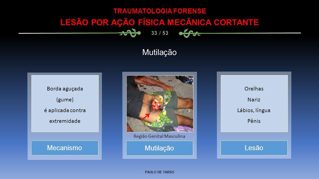 PAULO DE TARSO TRAUMATOLOGIA FORENSE LESÃO POR AÇÃO FÍSICA MECÂNICA CORTANTE 33 / 53 Mutilação Região Genital Masculina MecanismoLesão Borda aguçada (