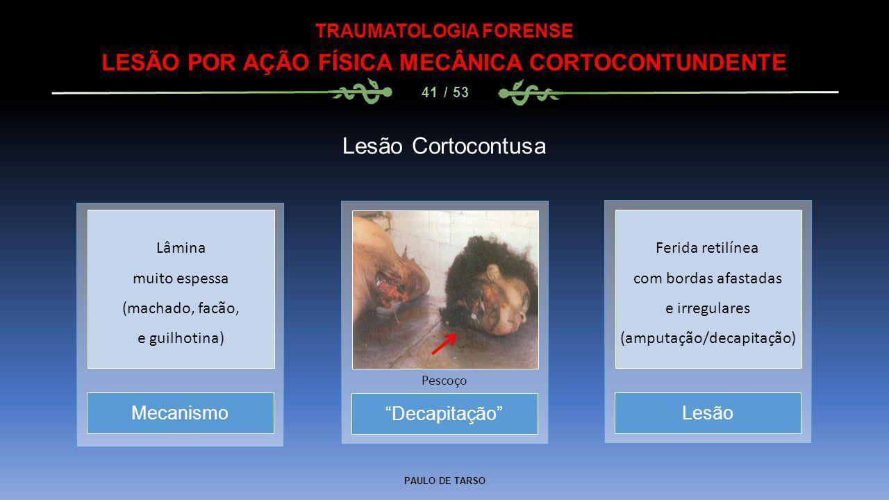 """PAULO DE TARSO TRAUMATOLOGIA FORENSE LESÃO POR AÇÃO FÍSICA MECÂNICA CORTOCONTUNDENTE 41 / 53 Lesão Cortocontusa """"Decapitação"""" Pescoço MecanismoLesão L"""