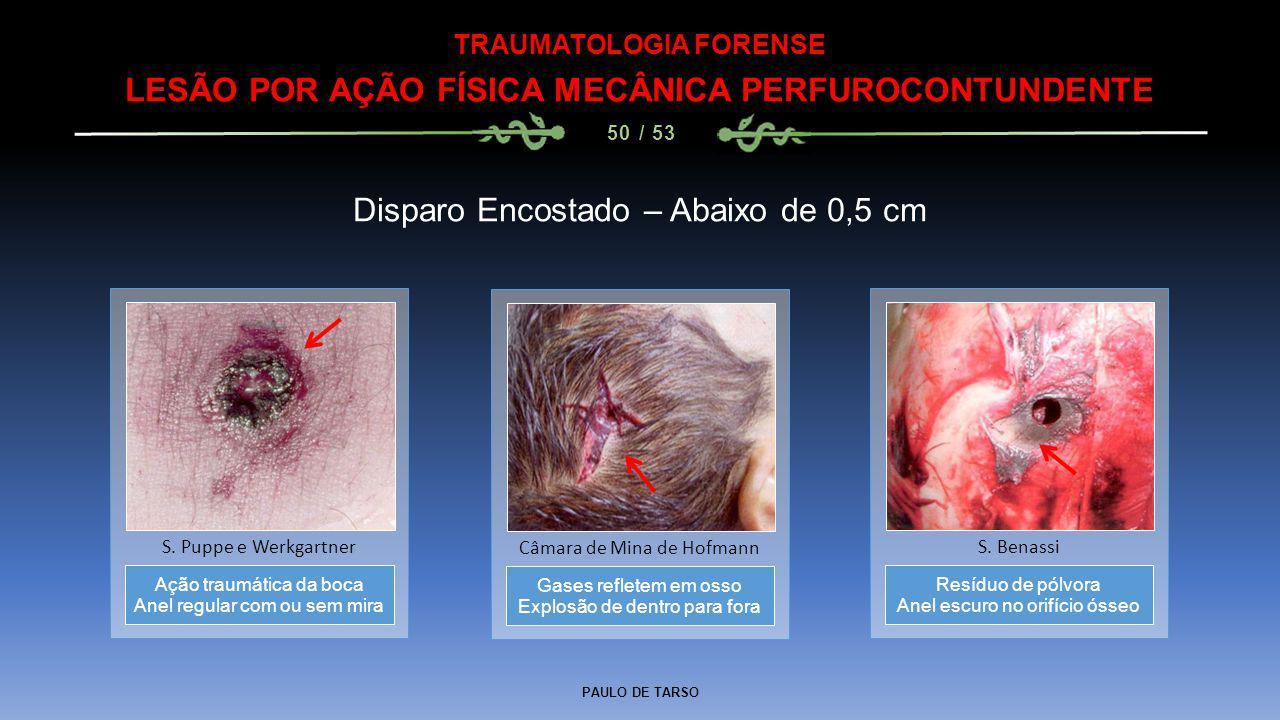 PAULO DE TARSO TRAUMATOLOGIA FORENSE LESÃO POR AÇÃO FÍSICA MECÂNICA PERFUROCONTUNDENTE 50 / 53 Disparo Encostado – Abaixo de 0,5 cm Gases refletem em