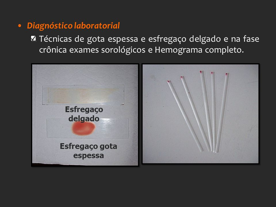 Diagnóstico laboratorial Técnicas de gota espessa e esfregaço delgado e na fase crônica exames sorológicos e Hemograma completo. Esfregaço gota espess