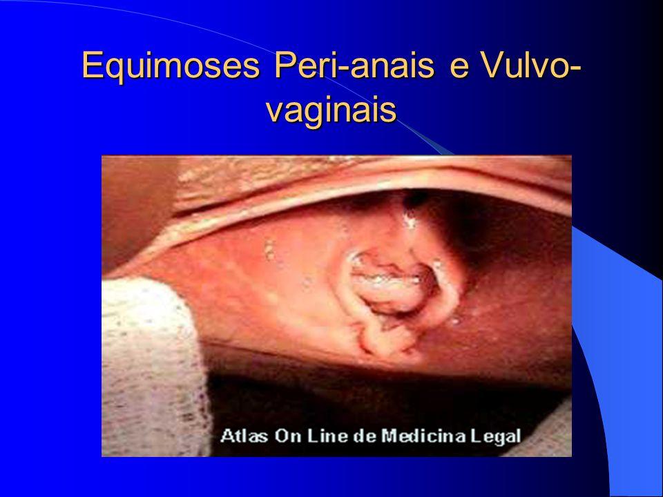 Equimoses Peri-anais e Vulvo- vaginais