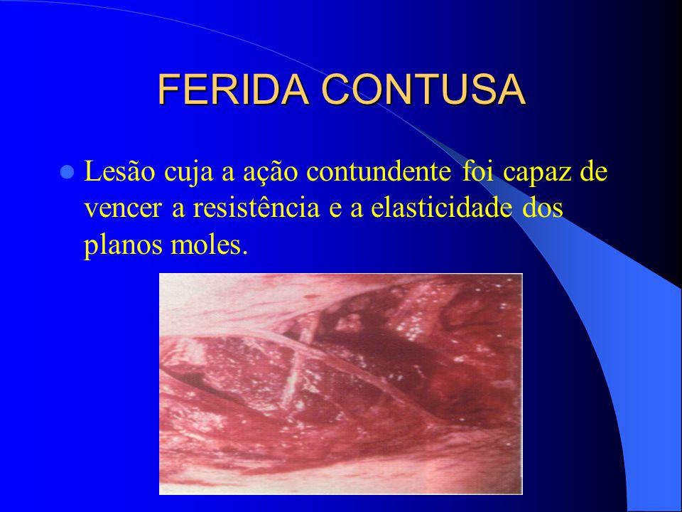 CARACTERÍSTICAS DA FERIDA CONTUSA A) Forma estrelada B) Bordas irregulares e escoriadas C) Fundo irregular D) Vertentes irregulares E) presença de pontes de tecido F) Retração das bordas da ferida G) Pouco sangrantes