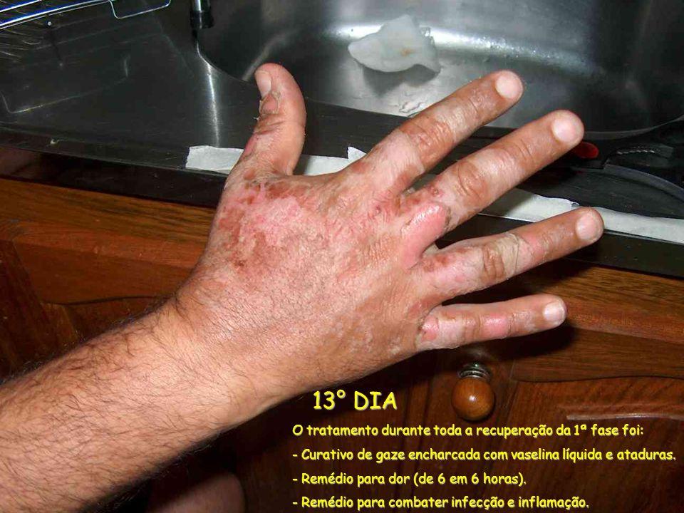 13° DIA 13° DIA O tratamento durante toda a recuperação da 1ª fase foi: - Curativo de gaze encharcada com vaselina líquida e ataduras. - Remédio para