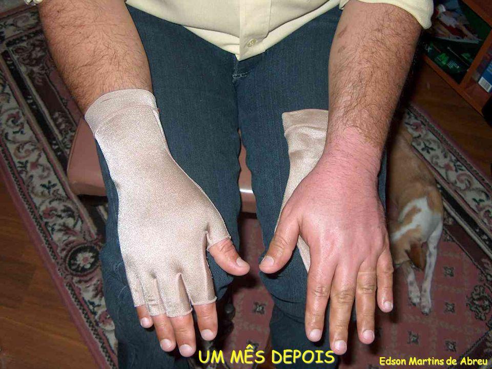 UM MÊS DEPOIS UM MÊS DEPOIS Edson Martins de Abreu