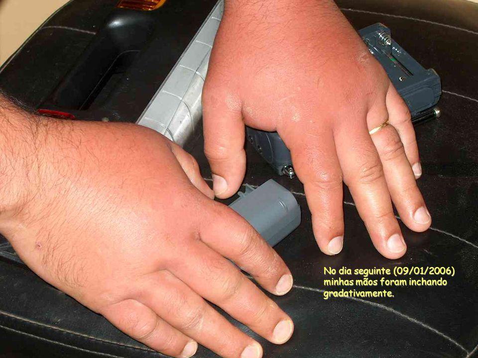 No dia seguinte (09/01/2006) minhas mãos foram inchando gradativamente.