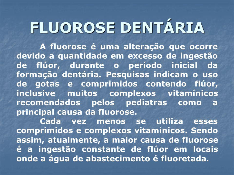 FLUOROSE DENTÁRIA A fluorose é uma alteração que ocorre devido a quantidade em excesso de ingestão de flúor, durante o período inicial da formação den