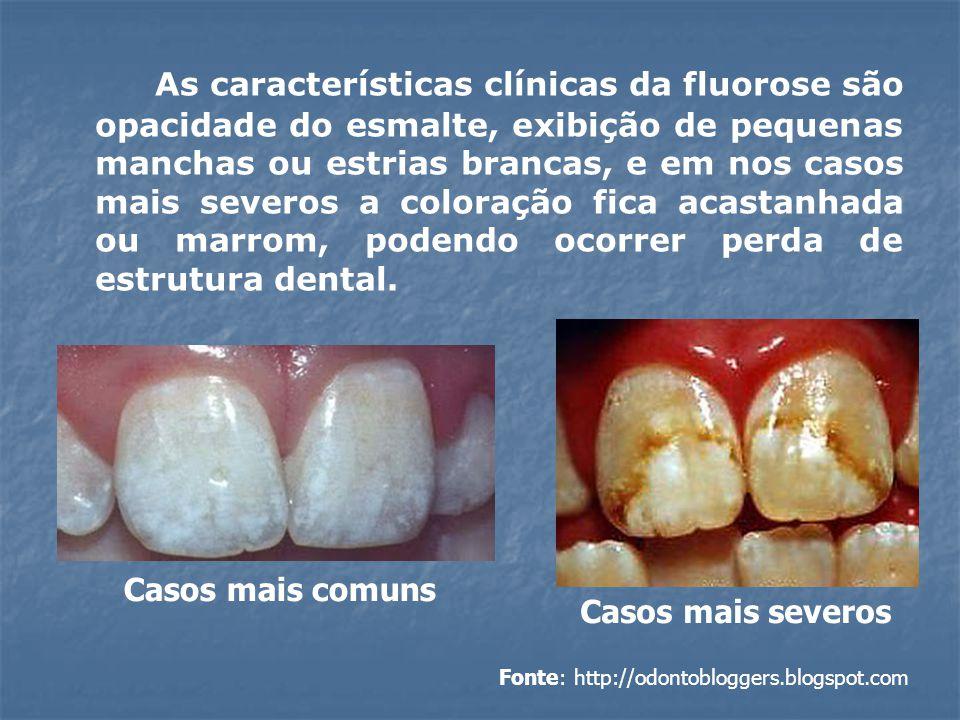 As características clínicas da fluorose são opacidade do esmalte, exibição de pequenas manchas ou estrias brancas, e em nos casos mais severos a color