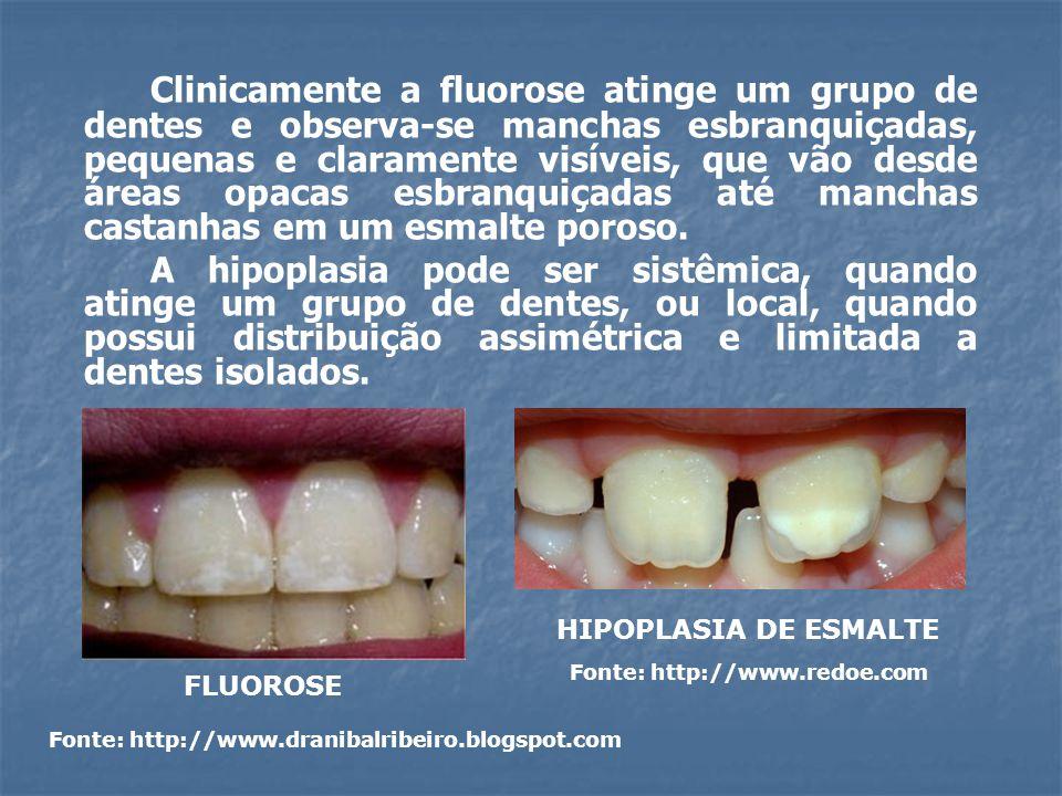 Clinicamente a fluorose atinge um grupo de dentes e observa-se manchas esbranquiçadas, pequenas e claramente visíveis, que vão desde áreas opacas esbr