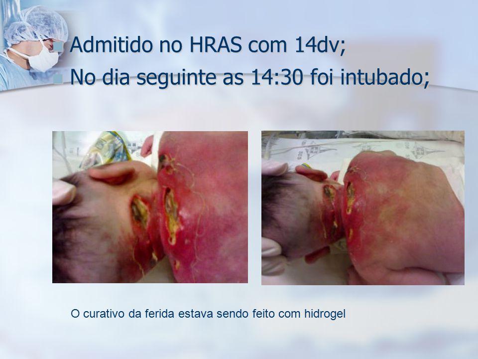 Admitido no HRAS com 14dv; Admitido no HRAS com 14dv; No dia seguinte as 14:30 foi intubado ; No dia seguinte as 14:30 foi intubado ; O curativo da fe