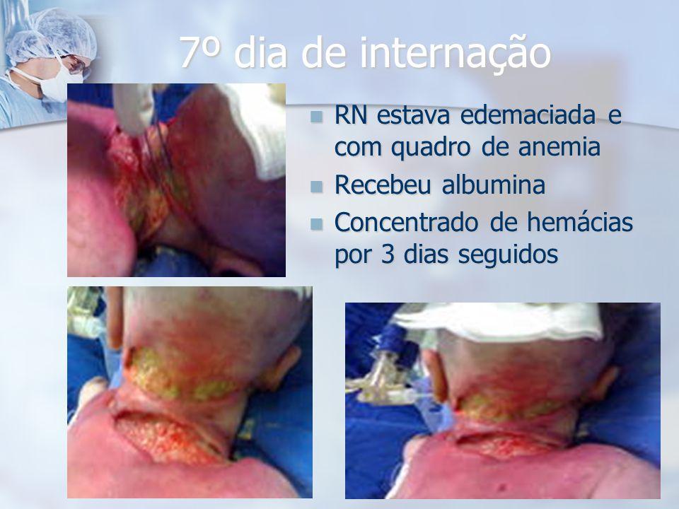 7º dia de internação RN estava edemaciada e com quadro de anemia RN estava edemaciada e com quadro de anemia Recebeu albumina Recebeu albumina Concent