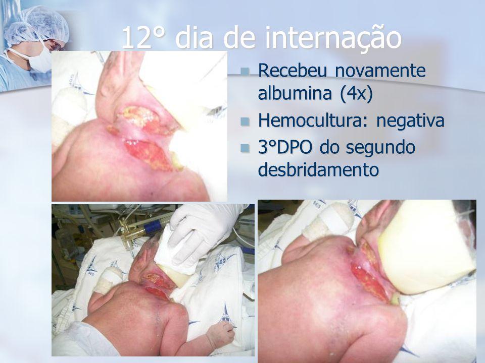 12° dia de internação Recebeu novamente albumina (4x) Recebeu novamente albumina (4x) Hemocultura: negativa Hemocultura: negativa 3°DPO do segundo des