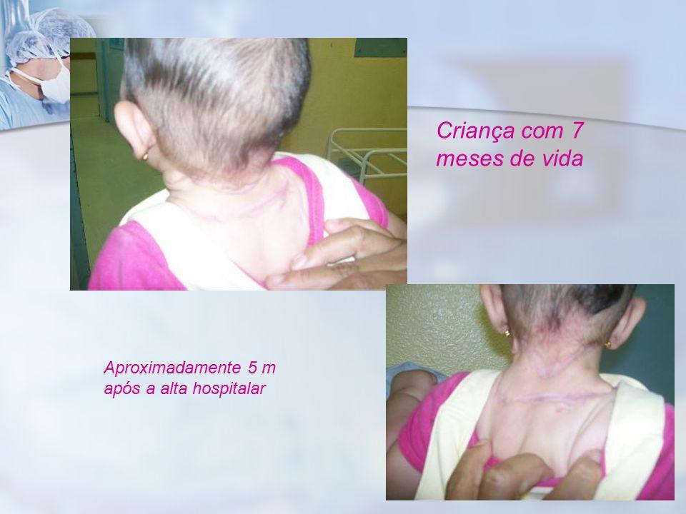 Criança com 7 meses de vida Aproximadamente 5 m após a alta hospitalar