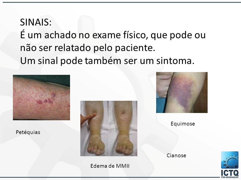 SINAIS: É um achado no exame físico, que pode ou não ser relatado pelo paciente. Um sinal pode também ser um sintoma. Petéquias Edema de MMII Equimose