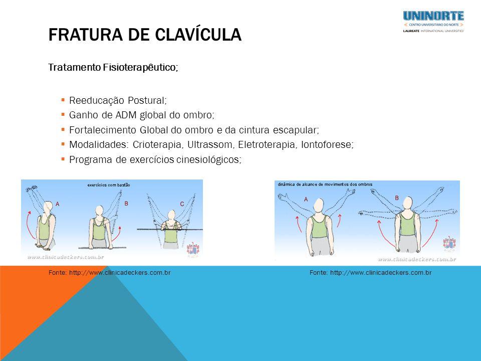 FRATURA DE CLAVÍCULA Tratamento Fisioterapêutico;  Reeducação Postural;  Ganho de ADM global do ombro;  Fortalecimento Global do ombro e da cintura escapular;  Modalidades: Crioterapia, Ultrassom, Eletroterapia, Iontoforese;  Programa de exercícios cinesiológicos; Fonte: http://www.clinicadeckers.com.br
