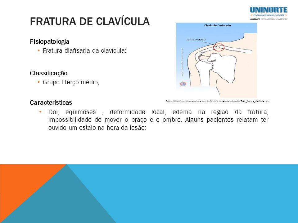 FRATURA DE CLAVÍCULA Fisiopatologia Fratura diafísaria da clavícula; Classificação Grupo I terço médio; Características Dor, equimoses, deformidade local, edema na região da fratura, impossibilidade de mover o braço e o ombro.