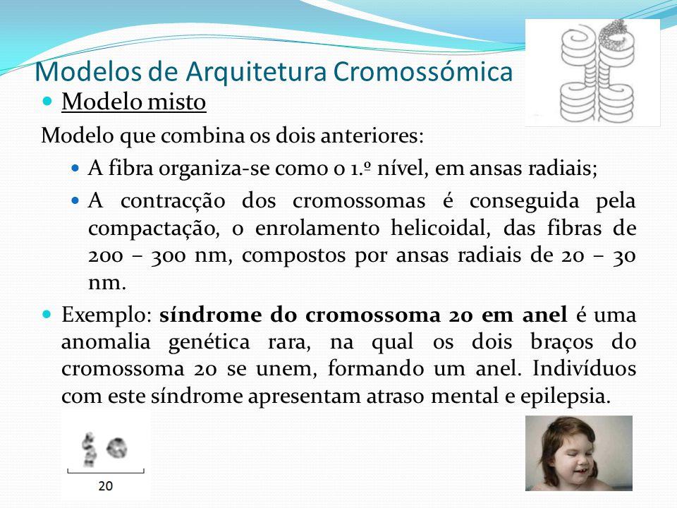 Modelos de Arquitetura Cromossómica Modelo de Saitoh e Laemonli A estrutura do cromossoma não é uniforme em todo o seu comprimento; Modelos mais recentes, em que o cromossoma em metafase é constituído por regiões mais compactadas (bandas Q/G) que alternam com regiões menos compactadas (bandas R); Os diferentes níveis da ansa, estão ligados por fibras de cromatina em que o seu DNA é rico em AT (esqueleto AT).