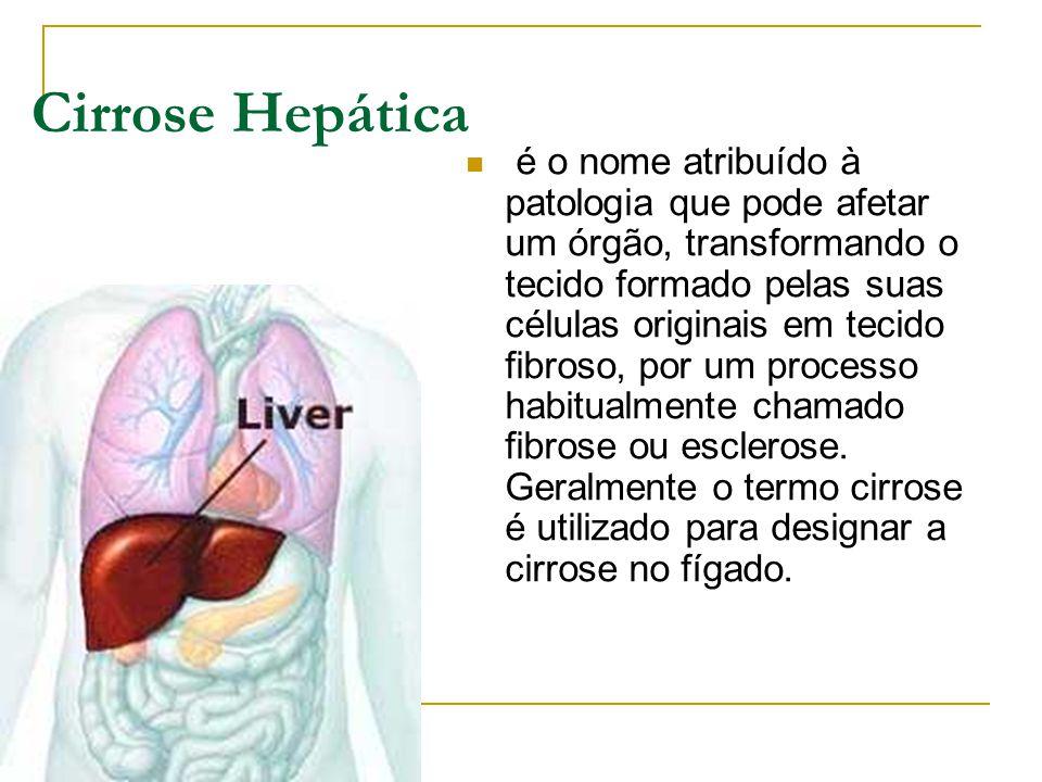Cirrose Hepática é o nome atribuído à patologia que pode afetar um órgão, transformando o tecido formado pelas suas células originais em tecido fibros