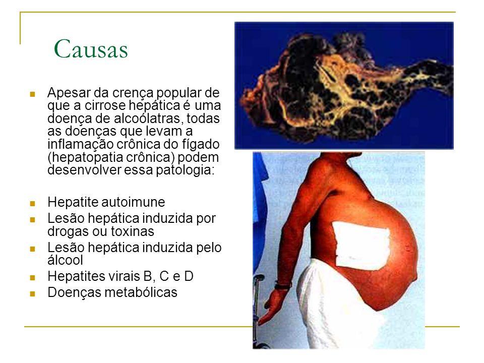 Causas Apesar da crença popular de que a cirrose hepática é uma doença de alcoólatras, todas as doenças que levam a inflamação crônica do fígado (hepa
