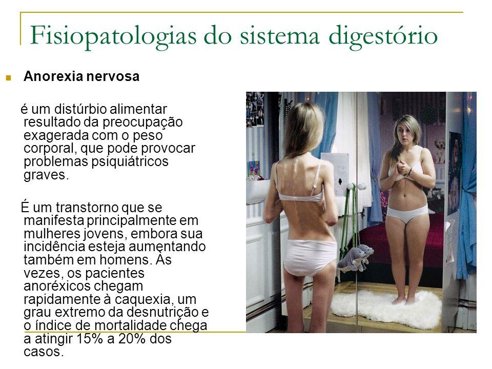 Fisiopatologias do sistema digestório Anorexia nervosa é um distúrbio alimentar resultado da preocupação exagerada com o peso corporal, que pode provo