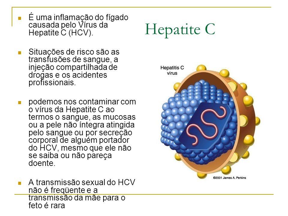 Hepatite C É uma inflamação do fígado causada pelo Vírus da Hepatite C (HCV). Situações de risco são as transfusões de sangue, a injeção compartilhada