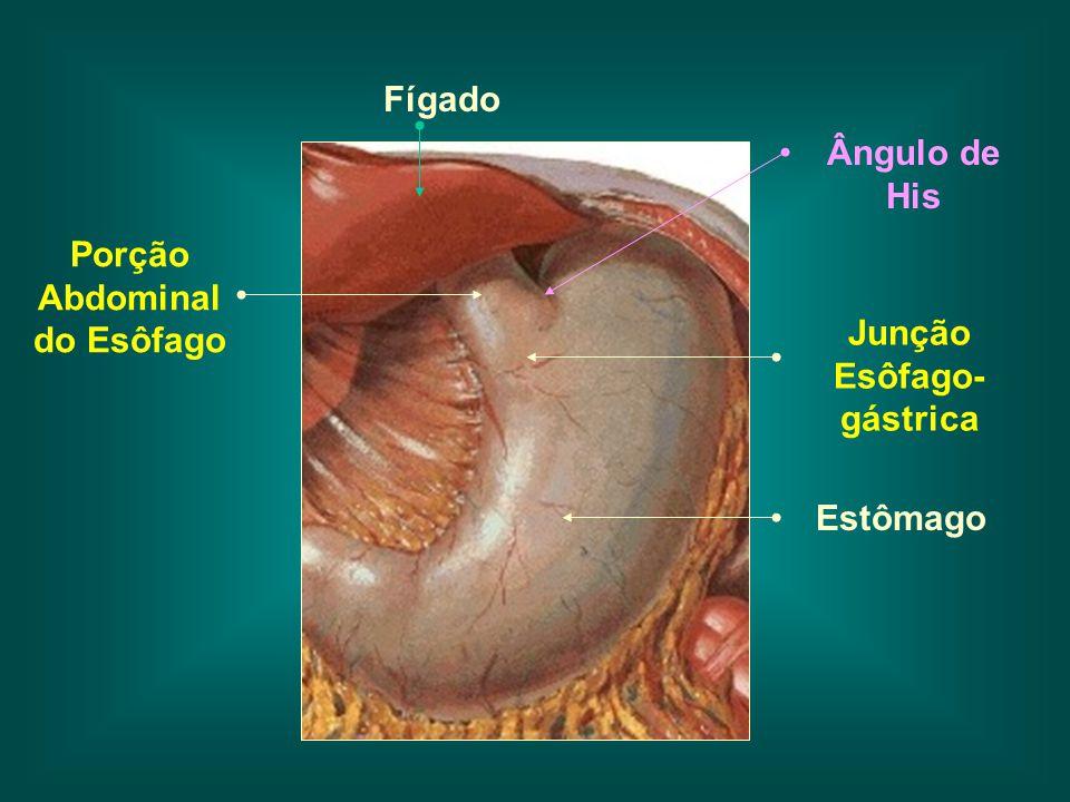 Porção Abdominal do Esôfago Ângulo de His Estômago Fígado Junção Esôfago- gástrica