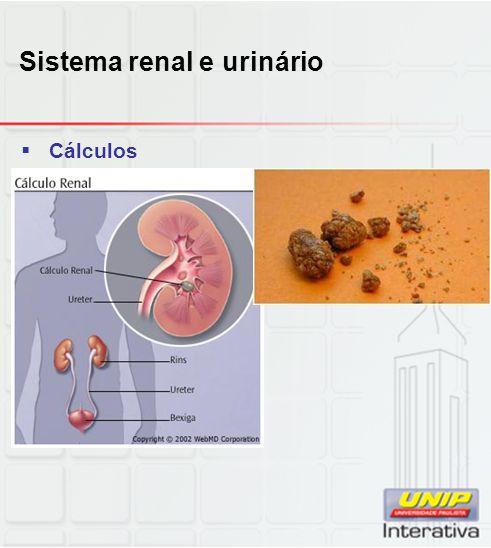 Sistema renal e urinário  Cálculos