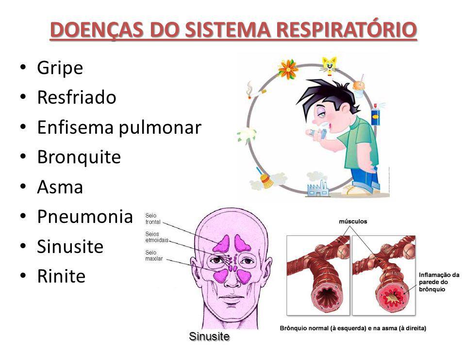 DOENÇAS DO SISTEMA RESPIRATÓRIO Gripe Resfriado Enfisema pulmonar Bronquite Asma Pneumonia Sinusite Rinite Sinusite
