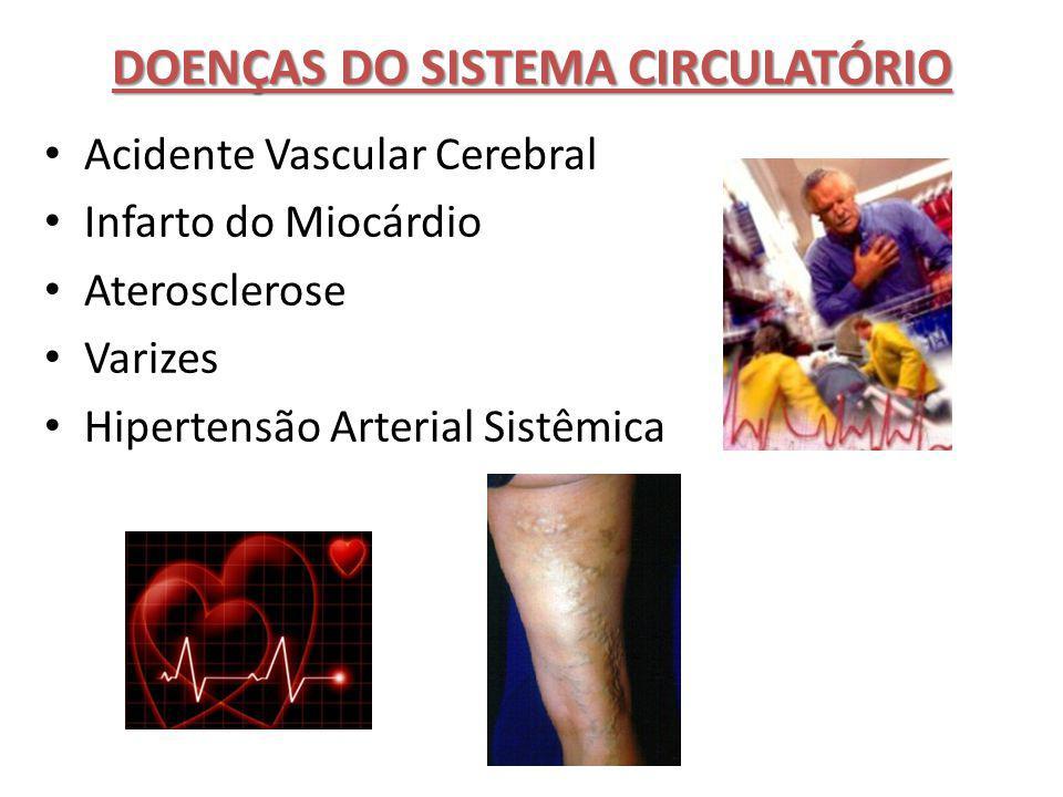 DOENÇAS DO SISTEMA CIRCULATÓRIO Acidente Vascular Cerebral Infarto do Miocárdio Aterosclerose Varizes Hipertensão Arterial Sistêmica