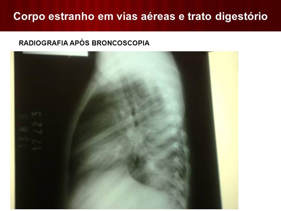 Corpo estranho em vias aéreas e trato digestório  RADIOGRAFIA APÓS BRONCOSCOPIA