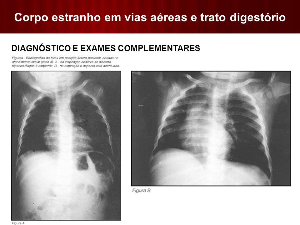 Corpo estranho em vias aéreas e trato digestório  DIAGNÓSTICO E EXAMES COMPLEMENTARES