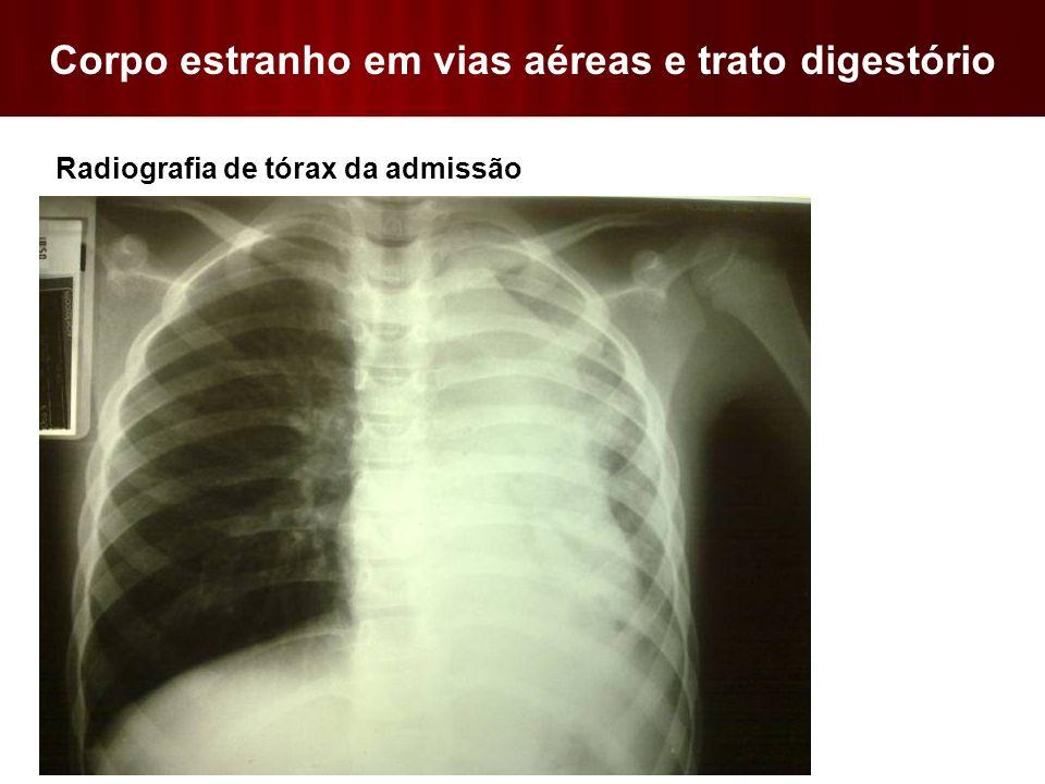 Corpo estranho em vias aéreas e trato digestório  Radiografia de tórax da admissão