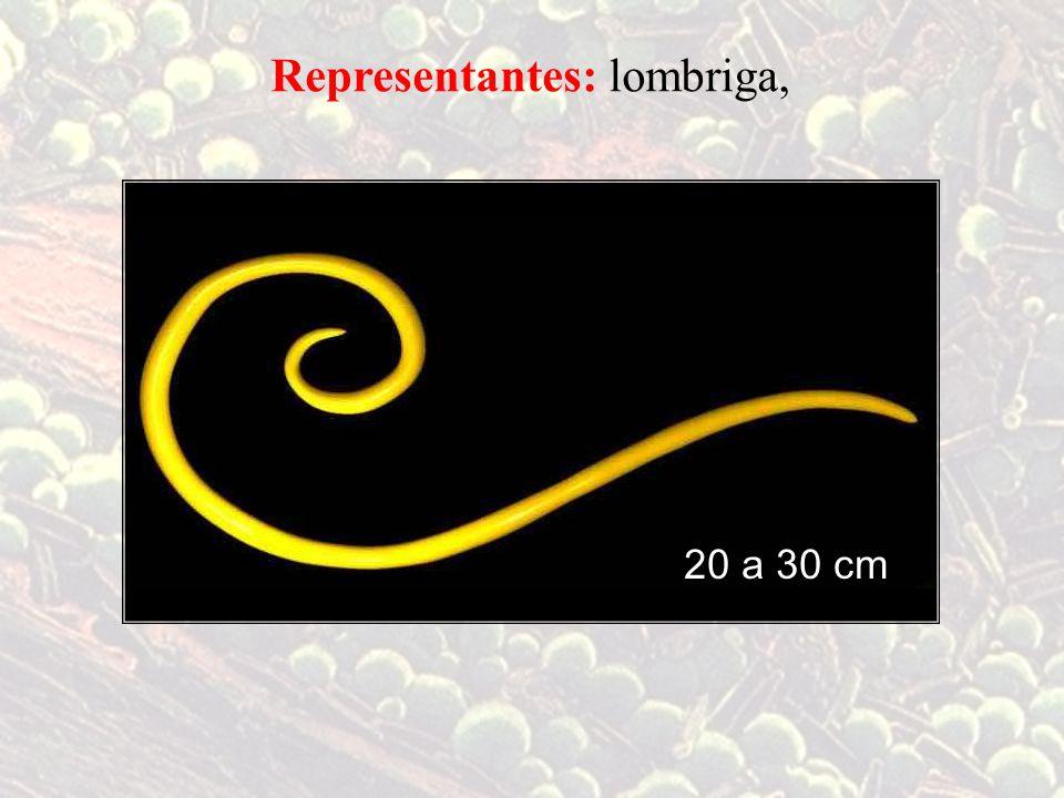 lombriga,Representantes: filária, 4 a 8 cm