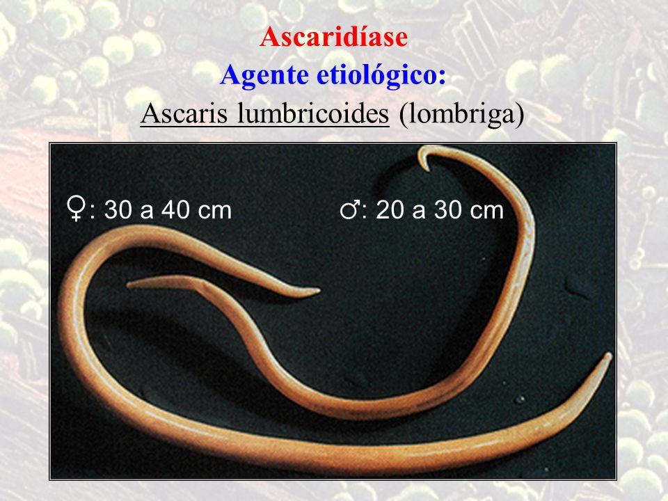 Ascaridíase Agente etiológico: Ascaris lumbricoides (lombriga) 20 a 30 cm30 a 40 cm ♀ : ♂ :