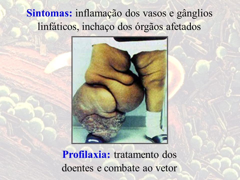 tratamento dosProfilaxia: doentes ecombate ao vetor inflamação dos vasos e gânglios linfáticos,inchaço dos órgãos afetados