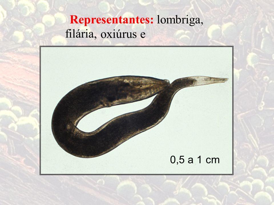 lombriga,Representantes: filária, oxiúrus e 0,5 a 1 cm