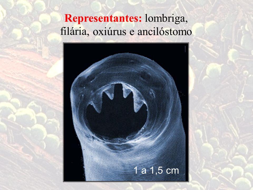 lombriga,Representantes: filária, ancilóstomo oxiúrus e 1 a 1,5 cm