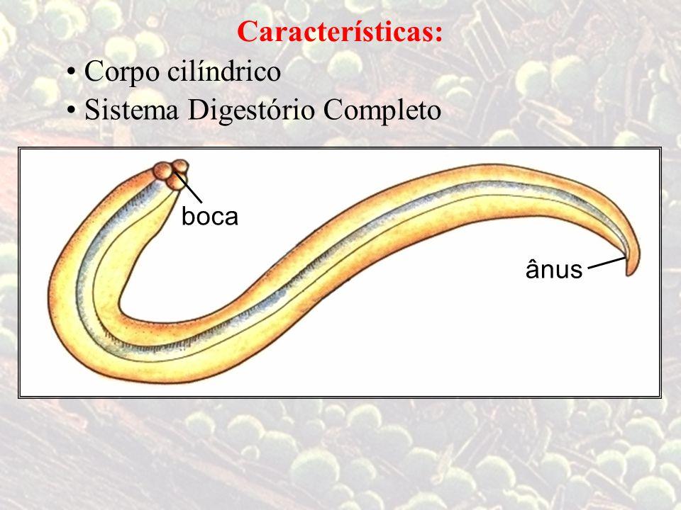 Agente etiológico: Filariose ouelefantíase Wuchereria bancrofti (filária) 4 a 8 cm
