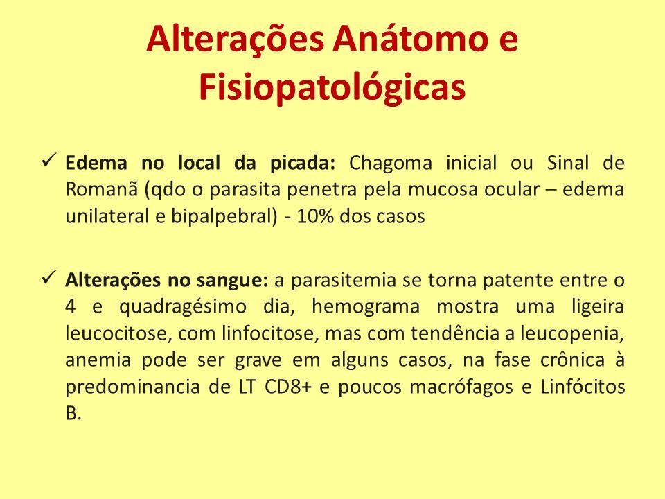 Alterações Anátomo e Fisiopatológicas Edema no local da picada: Chagoma inicial ou Sinal de Romanã (qdo o parasita penetra pela mucosa ocular – edema