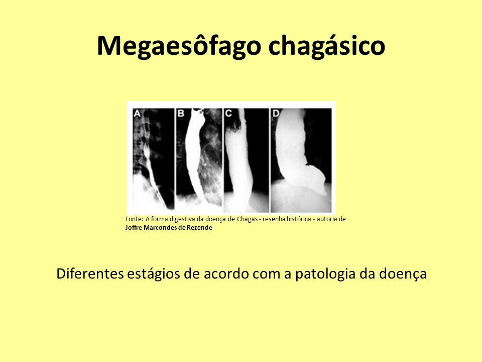 Megaesôfago chagásico Diferentes estágios de acordo com a patologia da doença Fonte: A forma digestiva da doença de Chagas - resenha histórica - autoria de Joffre Marcondes de Rezende