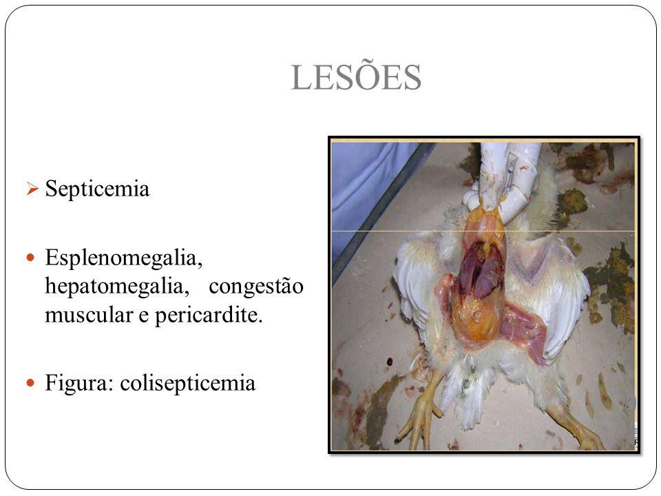  Septicemia Esplenomegalia, hepatomegalia, congestão muscular e pericardite.