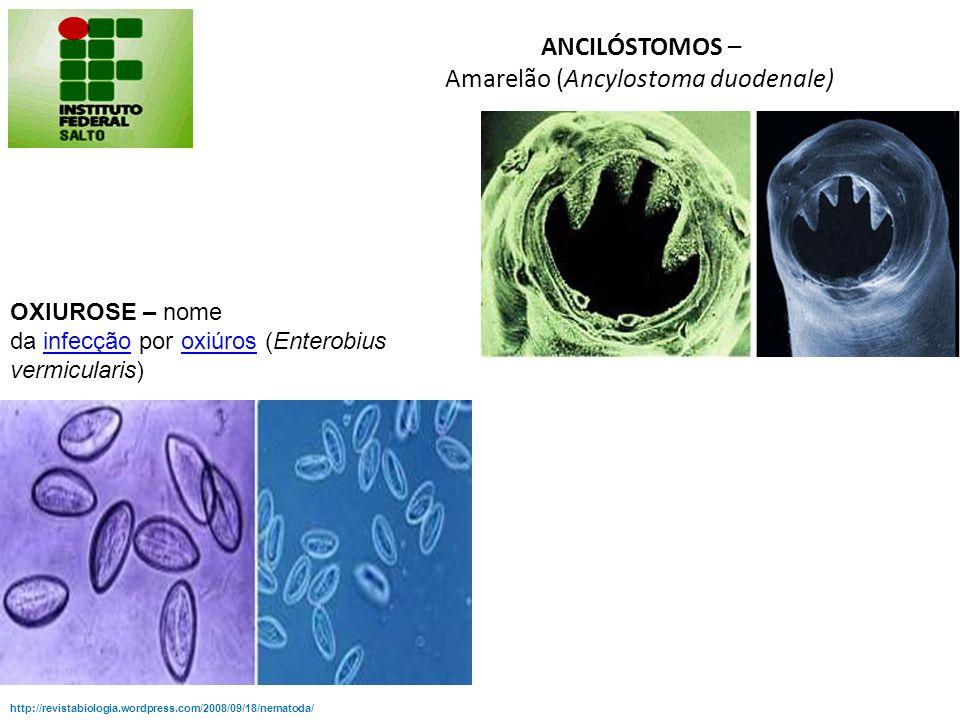 http://revistabiologia.wordpress.com/2008/09/18/nematoda/ FILARÍASE – também chamada elefantíase é a doença causada pelos parasitasnematóides Wuchereri a bancrofti, Brugia malayi e Brugia timori, comumente chamados filária, que se alojam nos vasos linfáticos, causando linfedema.doençanematóidesvasos linfáticos Tem como transmissor os mosquitos dos gêneros Culex, Anopheles, Man sonia ou Aedes, presentes nas regiões tropicais e subtropicaisCulexAnophelesMan soniaAedes http://www.brasilescola.com/doencas/dermatose.htm Conhecida popularmente como bicho- geográfico, é causada pela penetração de larvas de parasitas intestinais de cães e gatos na pele humana, principalmente o Ancylostoma brasiliensis