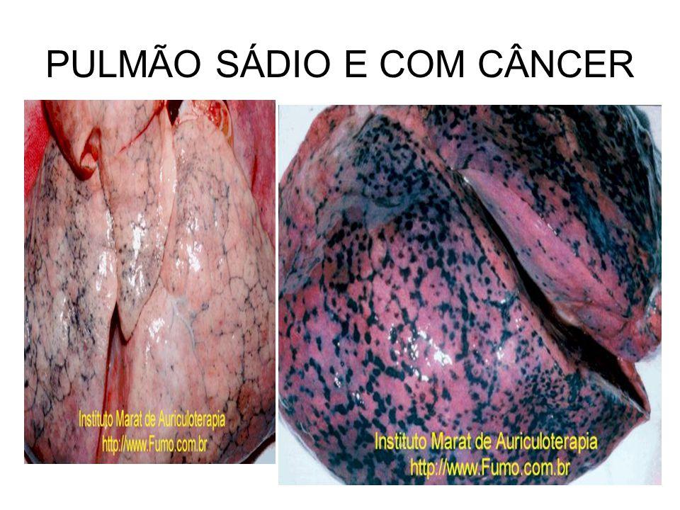 PULMÃO SÁDIO E COM CÂNCER