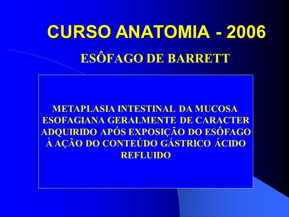 CURSO ANATOMIA - 2006 ESÔFAGO DE BARRETT METAPLASIA INTESTINAL DA MUCOSA ESOFAGIANA GERALMENTE DE CARACTER ADQUIRIDO APÓS EXPOSIÇÃO DO ESÔFAGO À AÇÃO DO CONTEÚDO GÁSTRICO ÁCIDO REFLUIDO