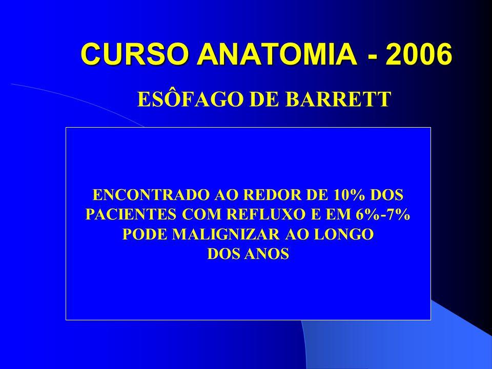 CURSO ANATOMIA - 2006 ESÔFAGO DE BARRETT ENCONTRADO AO REDOR DE 10% DOS PACIENTES COM REFLUXO E EM 6%-7% PODE MALIGNIZAR AO LONGO DOS ANOS