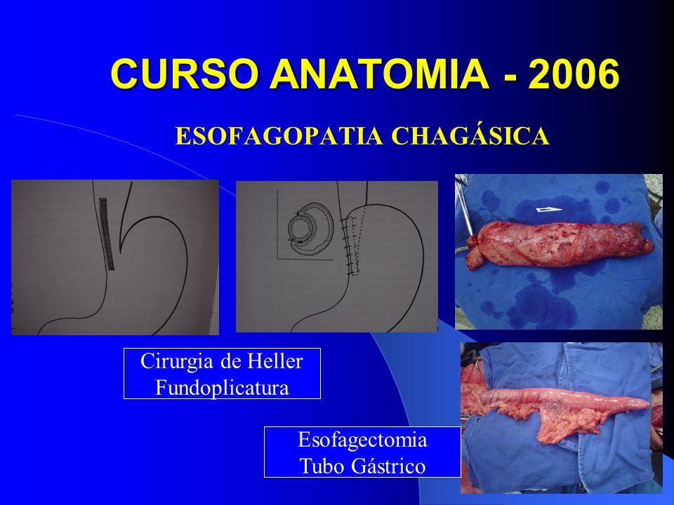 CURSO ANATOMIA - 2006 ESOFAGOPATIA CHAGÁSICA Cirurgia de Heller Fundoplicatura Esofagectomia Tubo Gástrico