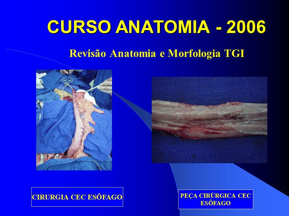 CURSO ANATOMIA - 2006 NEOPLASIAS DO ESÔFAGO CEC E ADENOCA EM BARRETT CEC – prognóstico pior (RTx+QTx+Cirurgia) AdenoCA – prognóstico melhor (Cirurgia)