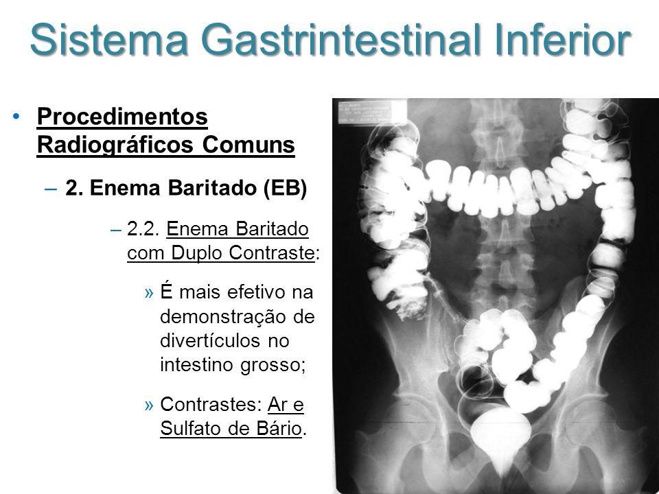 Sistema Gastrintestinal Inferior Procedimentos Radiográficos Comuns –2. Enema Baritado (EB) –2.2. Enema Baritado com Duplo Contraste: »É mais efetivo