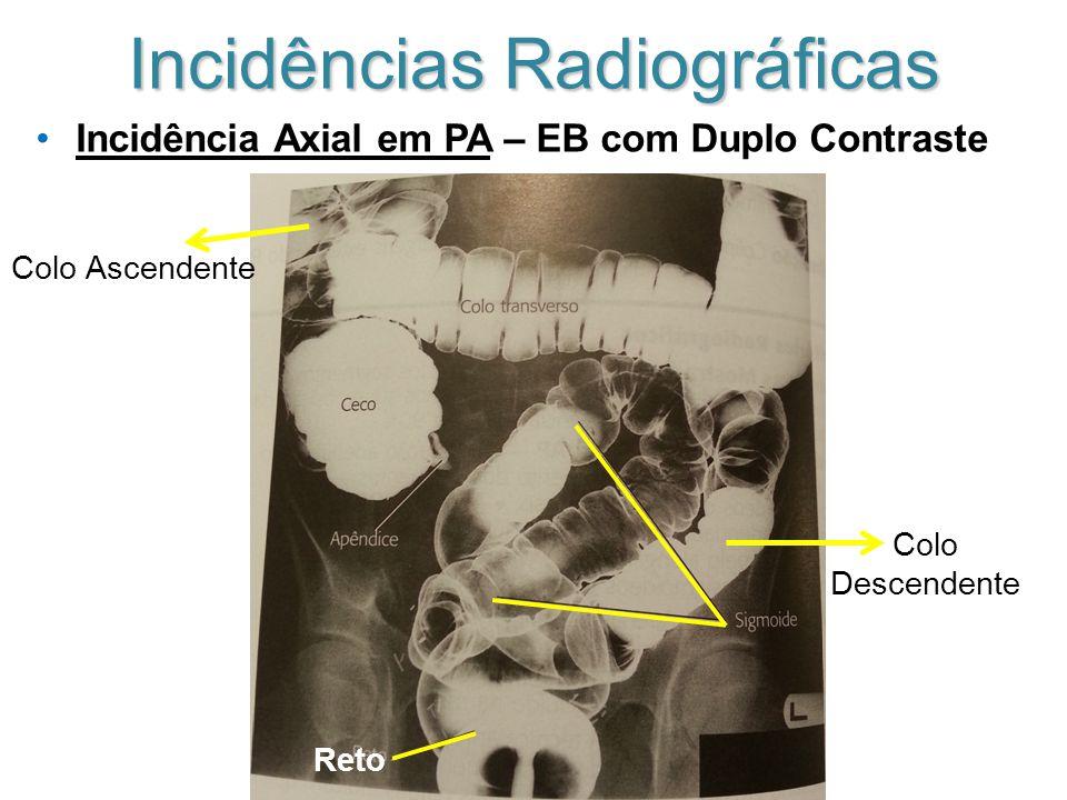 Incidências Radiográficas Incidência Axial em PA – EB com Duplo Contraste Colo Ascendente Colo Descendente Reto