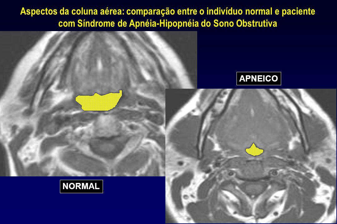 NORMAL APNEICO Aspectos da coluna aérea: comparação entre o indivíduo normal e paciente com Síndrome de Apnéia-Hipopnéia do Sono Obstrutiva