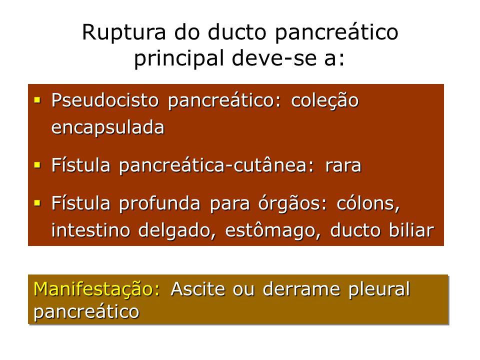Ruptura do ducto pancreático principal deve-se a:  Pseudocisto pancreático: coleção encapsulada  Fístula pancreática-cutânea: rara  Fístula profund